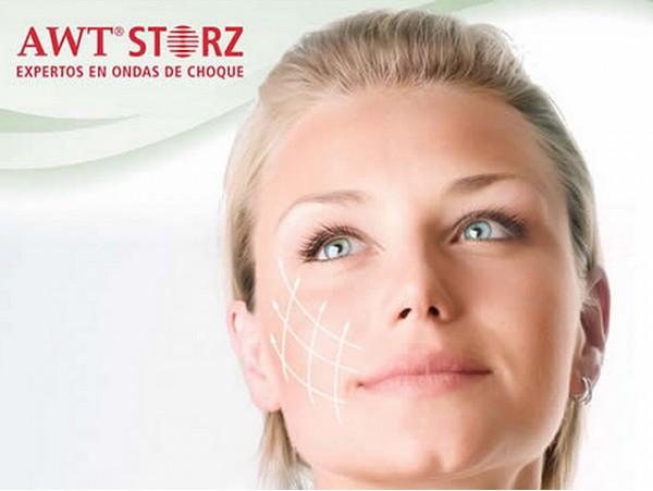 Tratamiento médico Facial Ondas de Choque de Storz Medical ¡Resultados visibles de inmediato!